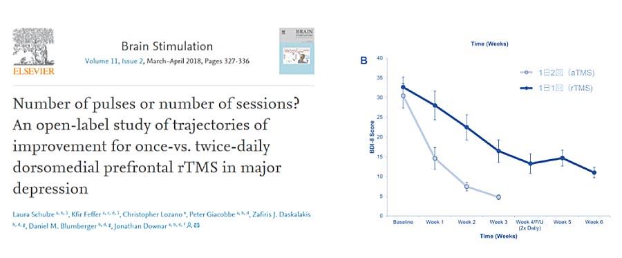 短期集中加速型のaTMS治療